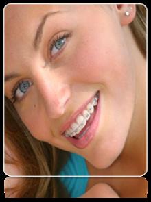 ortodoncia-getafe-ig