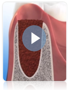 La preservación de hueso en una cirugia dental