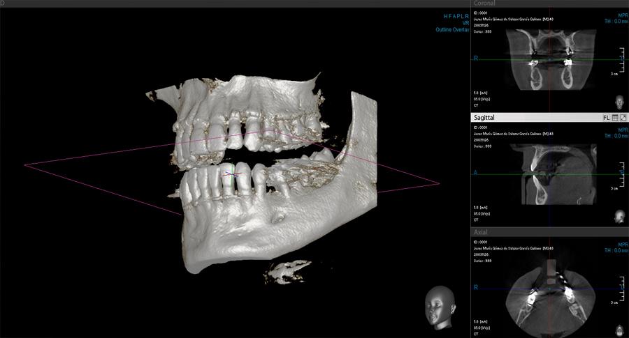 Radiografía dental 3D TAC dental
