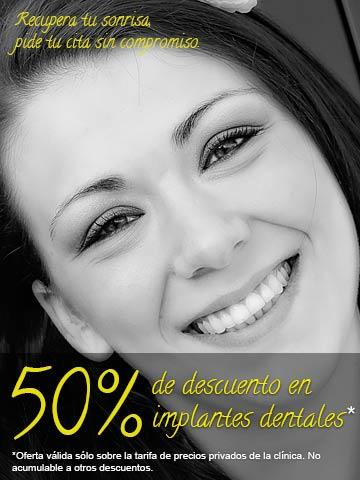 50% de descuento en implantes dentales en Getafe