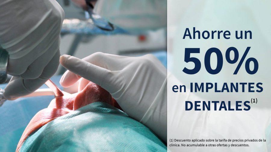 50% de descuento en implantes dentales en la clínica del dentista gomez de salazar en getafe