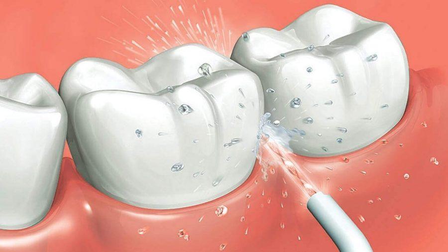El irrigador bucal eliminando las bacterias de la zona interproximal